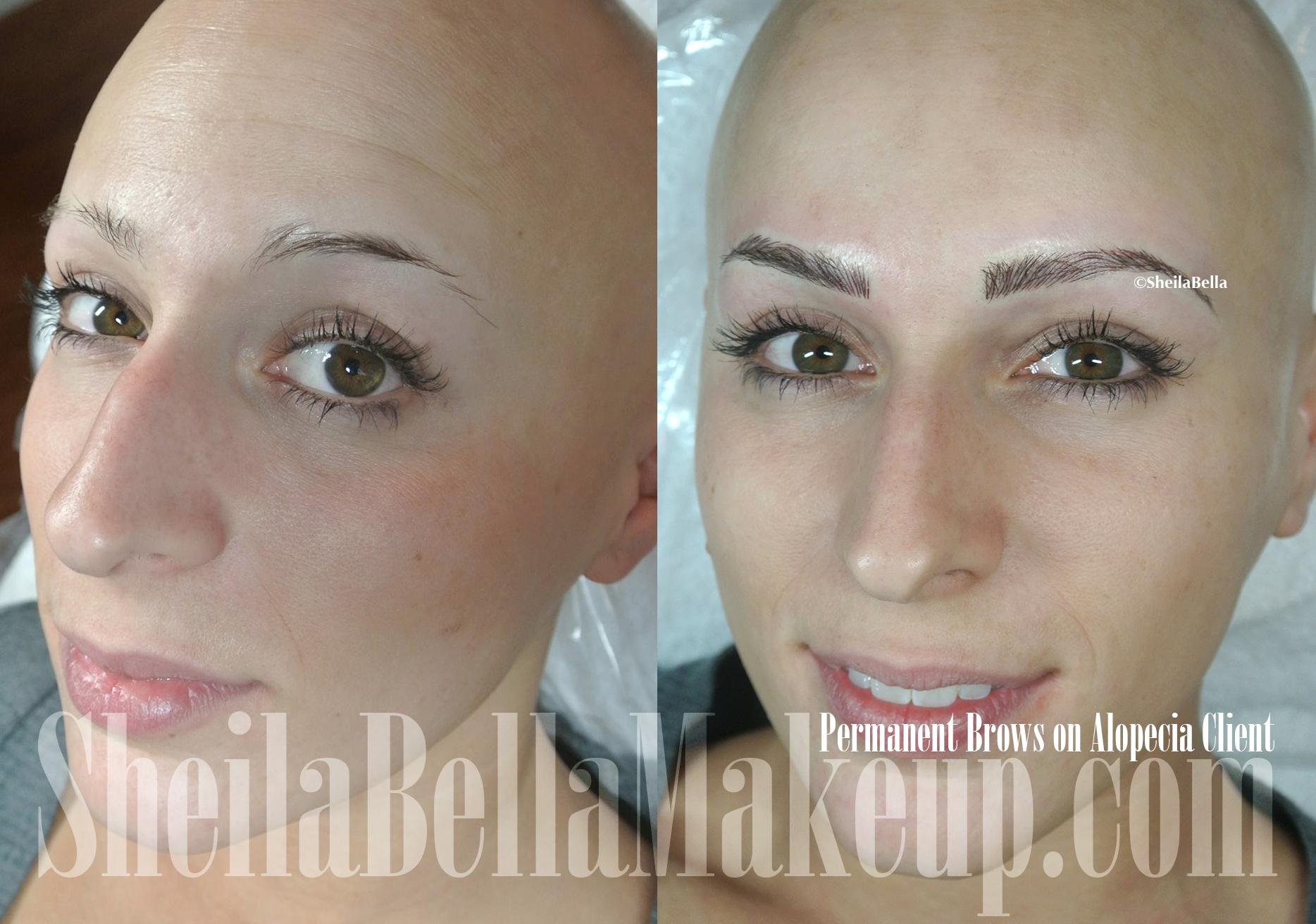 Micorpigmentation For Alopecia Sheila Bella Permanent Makeup And